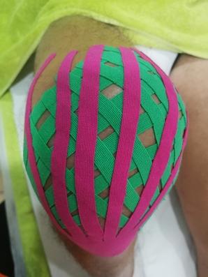 vendaje neuromuscular en rodilla, kinesiotape rodilla, kine rodilla, kine para la rodilla, vendaje neuromuscular corte linfático, vendaje para el dolor de rodilla kine, vendaje para la inflamación de rodilla, dolor de rodilla y el vendaje neuromuscular, dolor de rodilla y kinesiotape